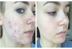 4 Simple Methods to Clear Up Acne Scars
