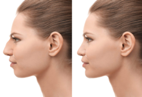 5 Myths About Rhinoplasty – Revisited